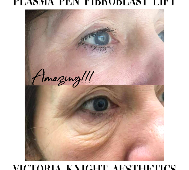 Plasma Pen Fibroblast for Under Eyes