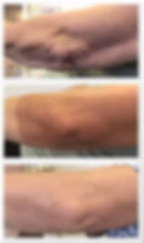 Plasma Results Arms.jpg