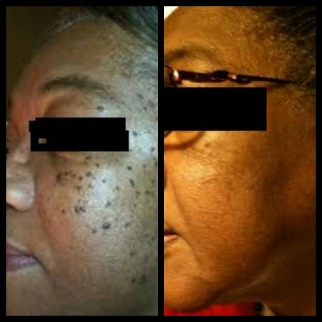 Dermatosis Papulosa Nigra Treatment Success!