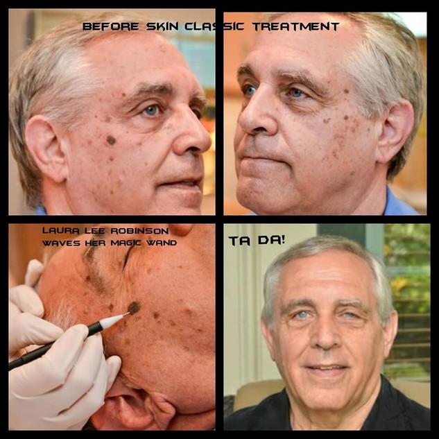 Seborrheic Keratosis Treatment