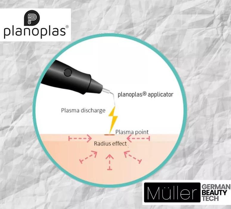 Plasma Pen Spark