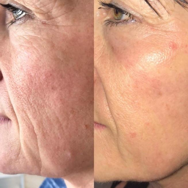 Plasma Fibroblast for Skin Resurfacing