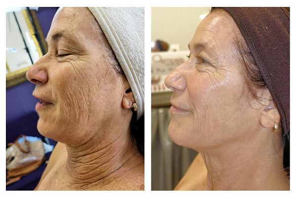 Beautiful Woman, Permanent Make-Up, Plasma Pen, Microneedling, Botox, Juvederm