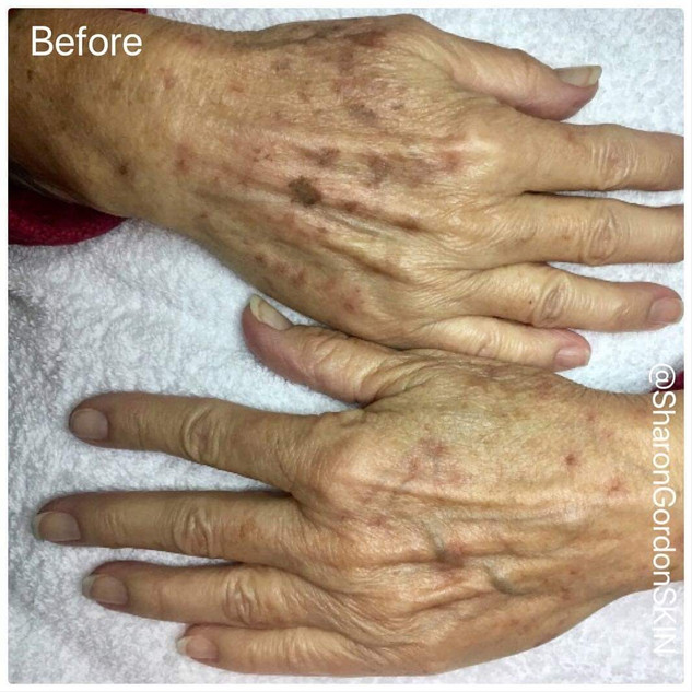 Age Spots on Hands - Before