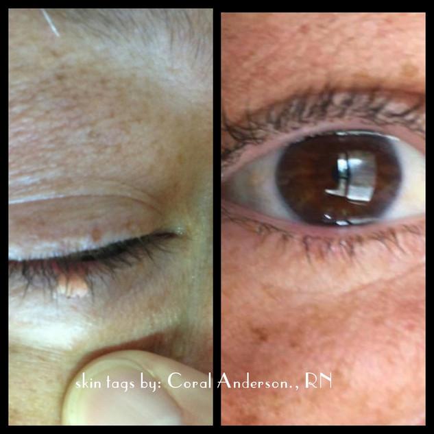 Skin Tags around the Eyes
