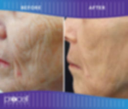 Procell before-after4.jpg