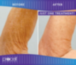 Procell Arms before-after16-1.jpg