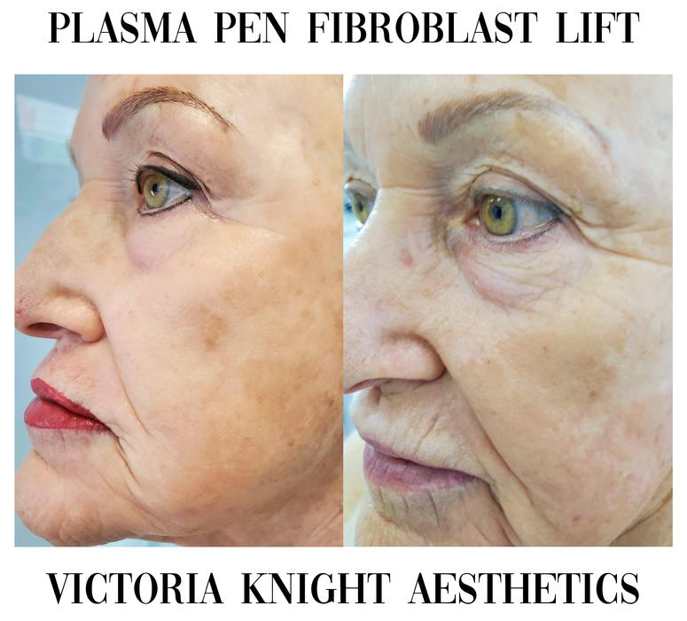Change your skin with Plasma