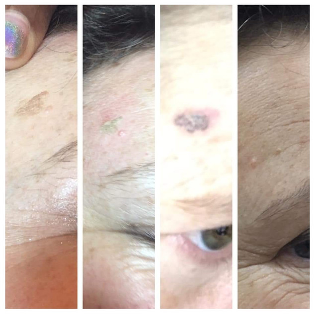 Flat Hyperpigmentation Spots can be dramatically lightened