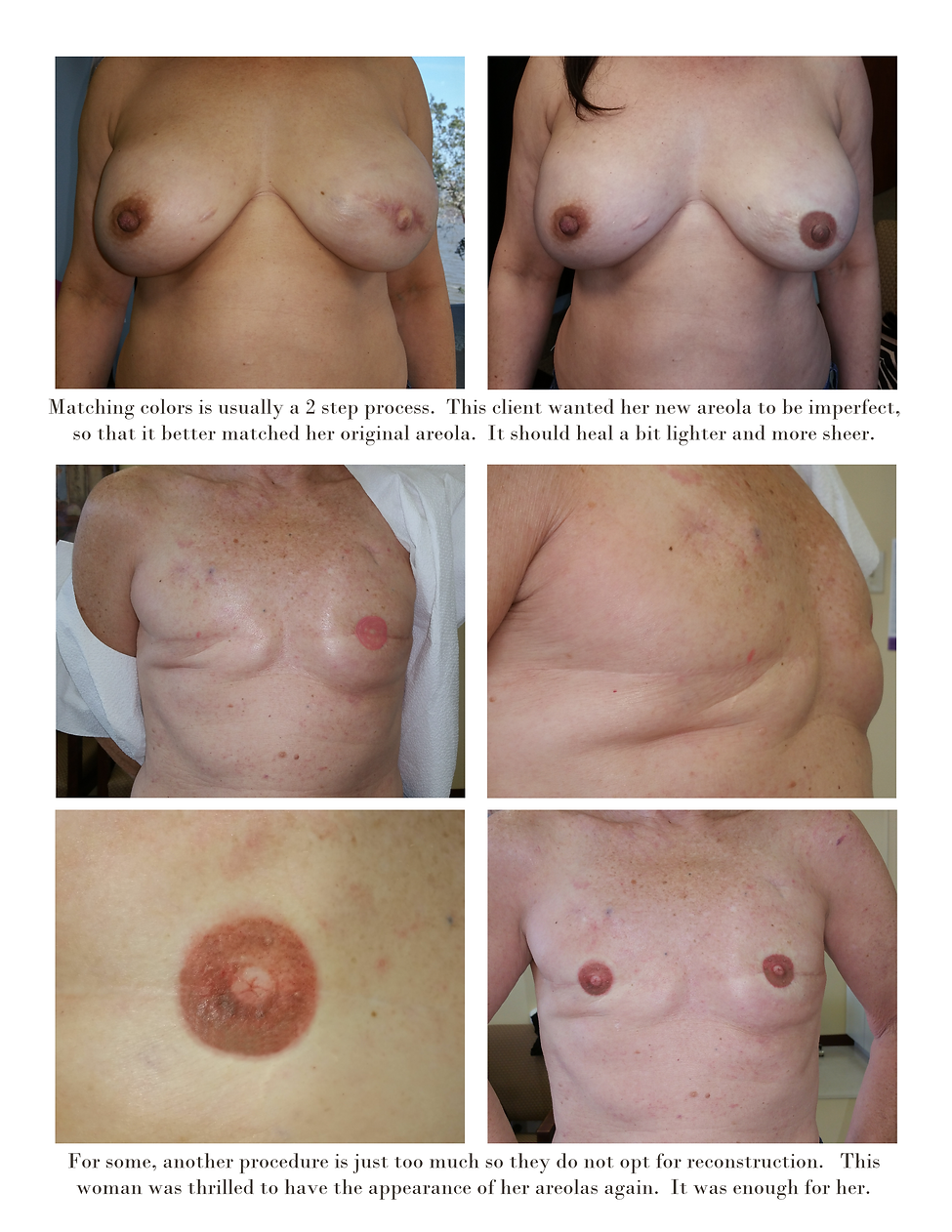 Breast Cancer Survivor, Areola Repigmentation, Micropigmentation, Areola Tattoo, NippleTattoo