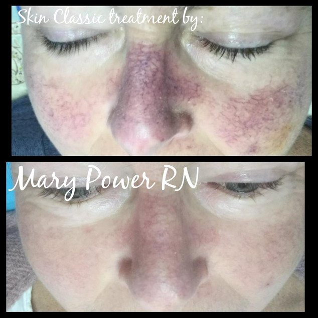 Broken Facial Capillaries are a Thing of the Past!