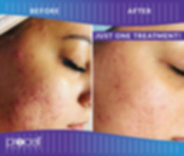 Acne and Scar Before and After, Beautiful Woman, Permanent Make-Up, Plasma Pen, Microneedling, Botox, Juvederm