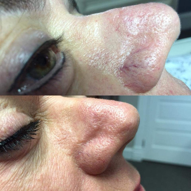 Broken Capillaries are common around the Nose ~ but can be treated!