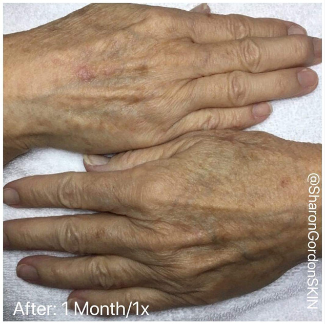 Age Spot Treatments for your Hands also help you look younger!