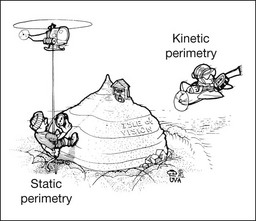 자동 고정 임계점 측정 방식의 시야검사 (Automatic static threshhold perimetry)
