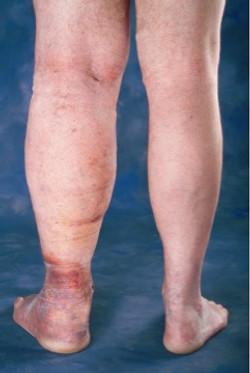 oedème de la jambe