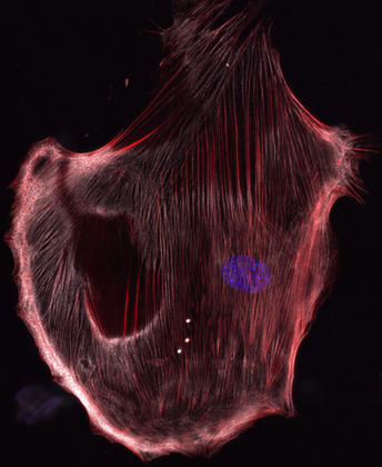 Primary mouse lung fibroblast