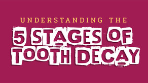 Understanding the Five Stages of Tooth Decay