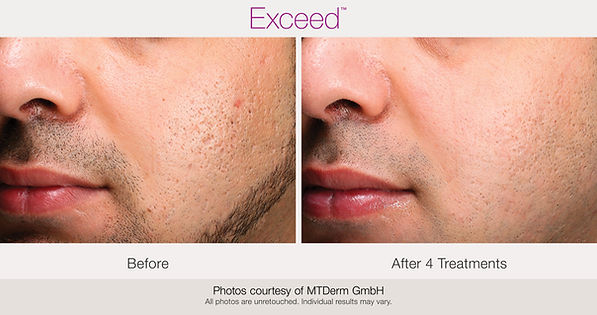 BA-Exceed-MTderm-acne-4Tx_000.jpg