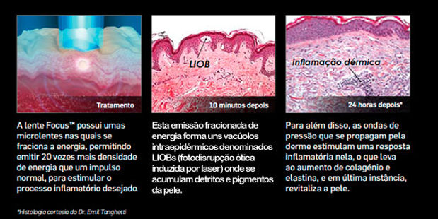 picosure-pt-cynosure-1.jpg