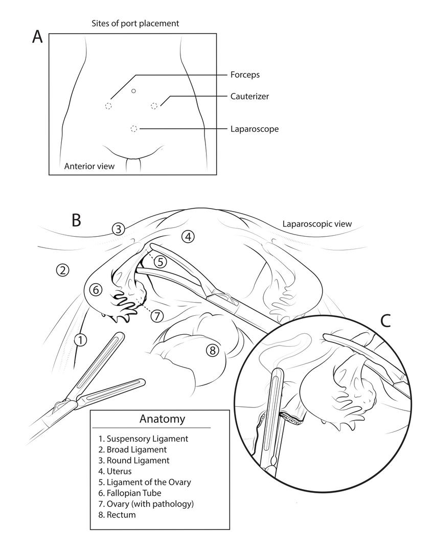 Salpingo-Oophorectomy 1/2
