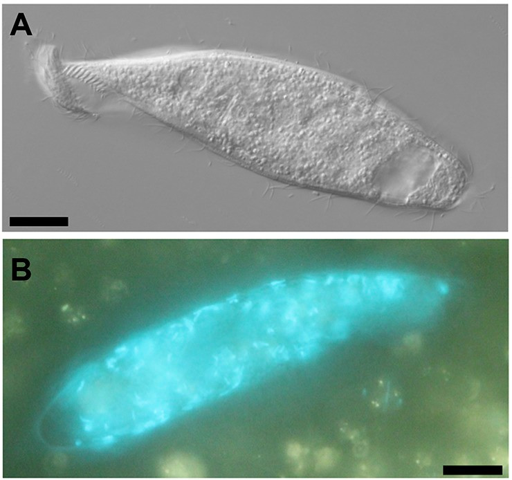 Micrographs of the Heterometopus ciliate strain CSS