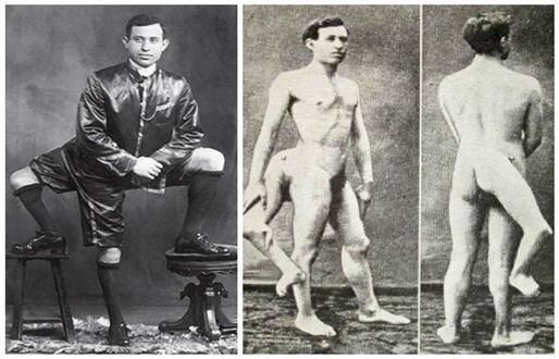 La historia de Francesco Lentini, el hombre que vivió con tres piernas y dos genitales totalmente fu