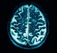 degenerative-diseases-of-the-brain-and-s