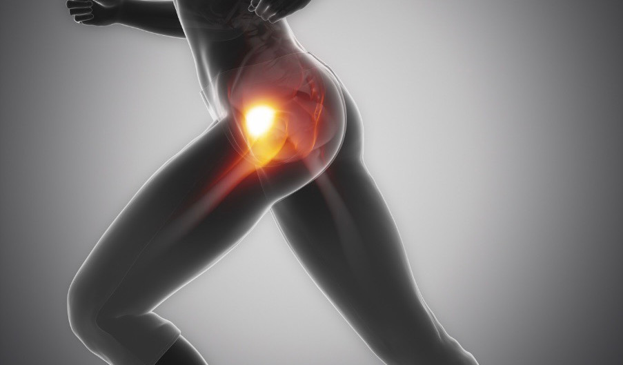 Running With Hip Impingement | How To Diagnose, Treat, And Prevent FAI