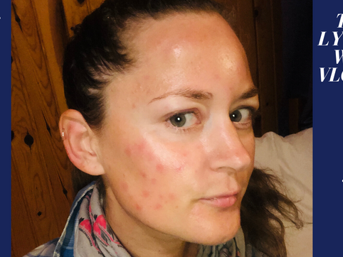 #18 - Sleeping with 1000s of mosquitoes…. half my face got messed UP!