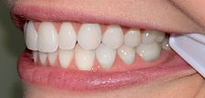 visage_santa_fe_orthodontics_invisalignI