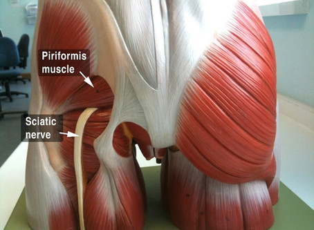 Piriformis Syndrome is Literally a Pain in the Butt!