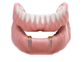 implant denture.png