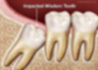 impacted-wisdom-tooth.jpg