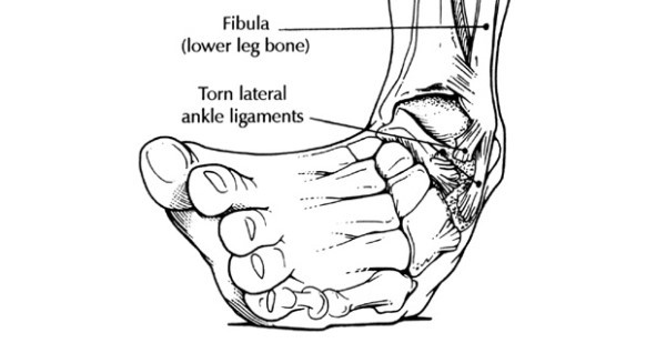 Ankle Inversion (5)