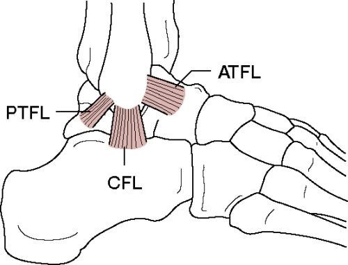 The lateral ligaments of the ankle (6)