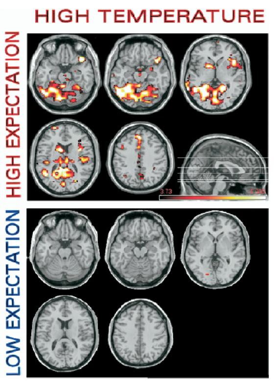 Heat expectation MRI (6)