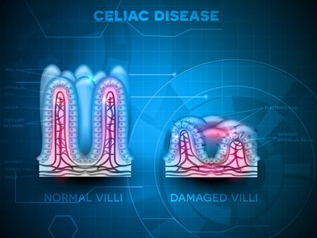 The Autoimmune Disease Series: Five Naturopathic Strategies for Celiac Disease
