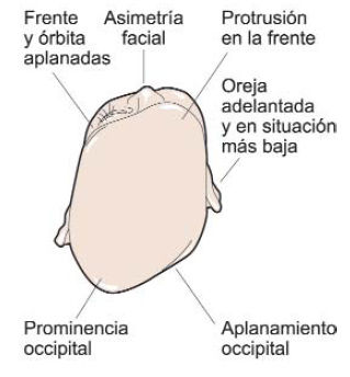 plagiocefalia malformación