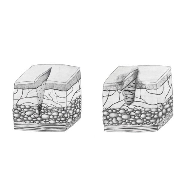 Cut vs. Laceration