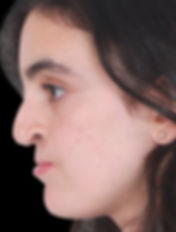 Dr John Yousif Cleft Lip Rhinoplasty