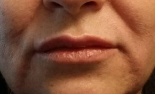 Wypełnienie ust.