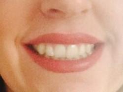 Uśmiech dziąsłowy.