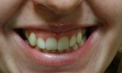 Uśmiech dziąsłowy