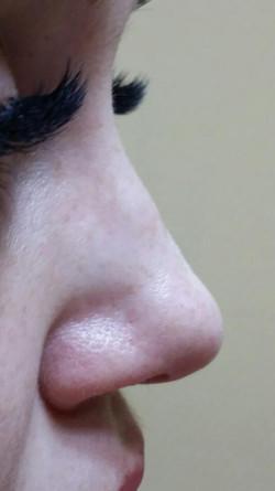 Niechirurgiczna korekta nosa.