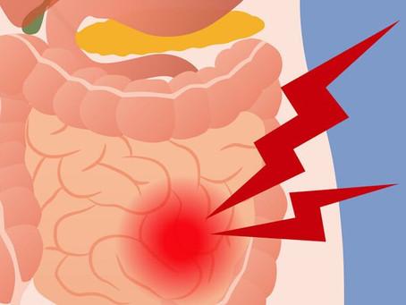 SII - Sindrome do Intestino Irritavel