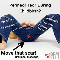Perineal tear during childbirth