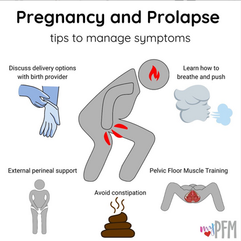 Pregnancy & Prolapse