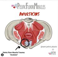 PFM Avulsions