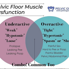 PFM Dysfunction